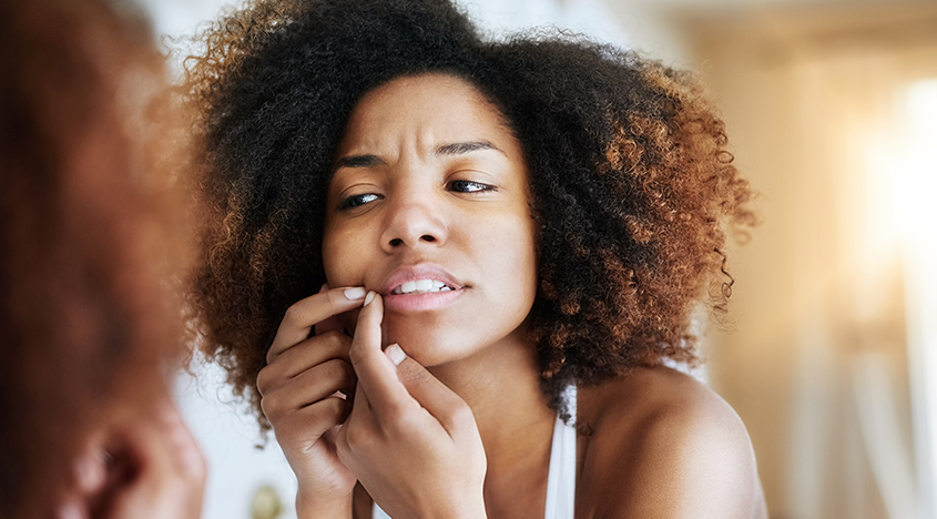 7 Reasons why your skin suddenly breaks out