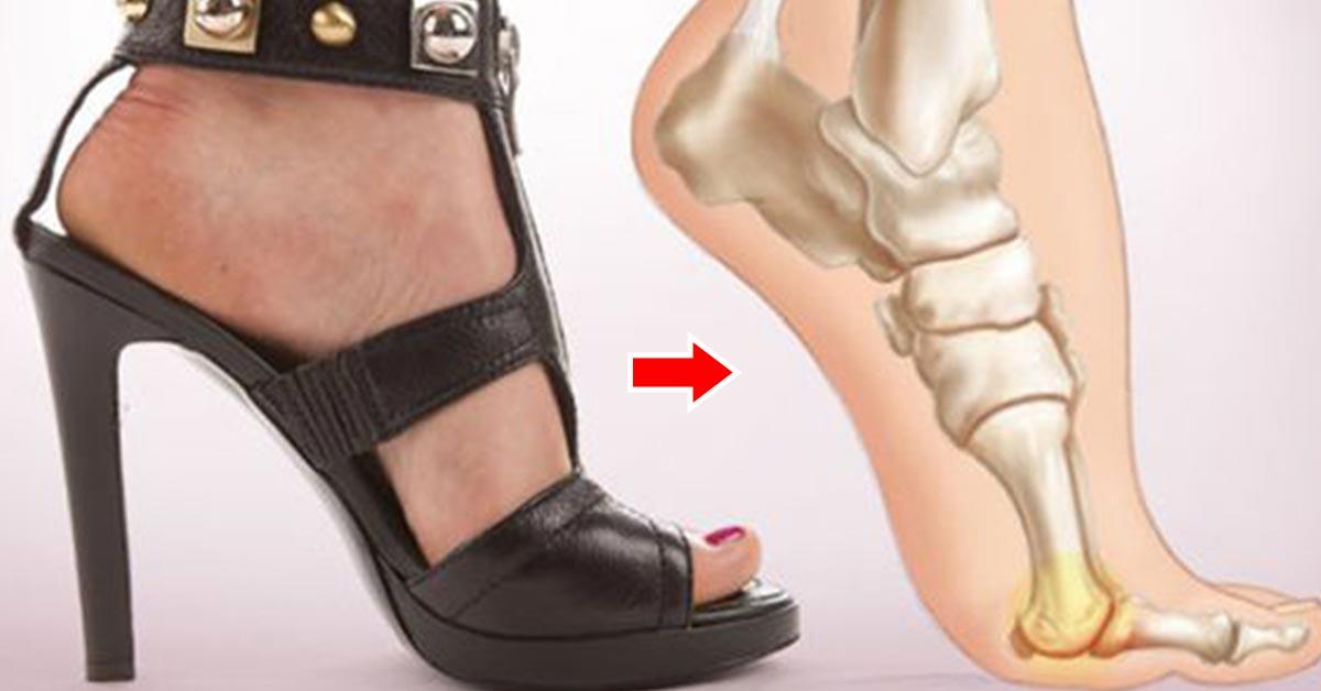 Side-Effects-Of-Wearing-High-Heels