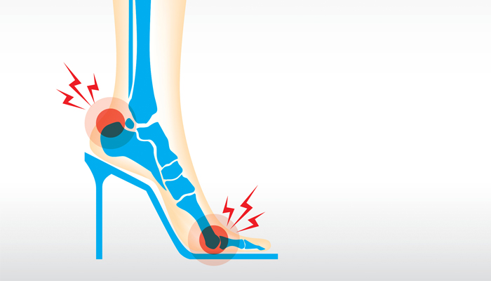 heels-and-back-pain